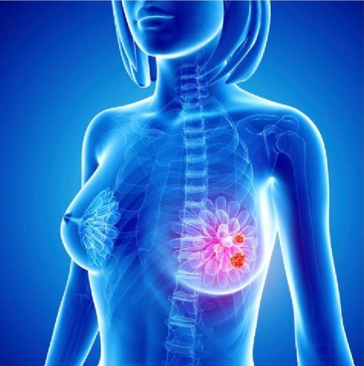 Imagen de la noticia ¿Te sientes indefensa ante un posible cáncer de mama?